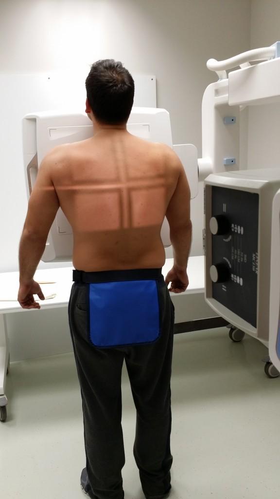 Toshiba digitális röntgen