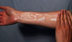 Óvja bőrét és vegyen részt bőrgyógyászati szűréseken!