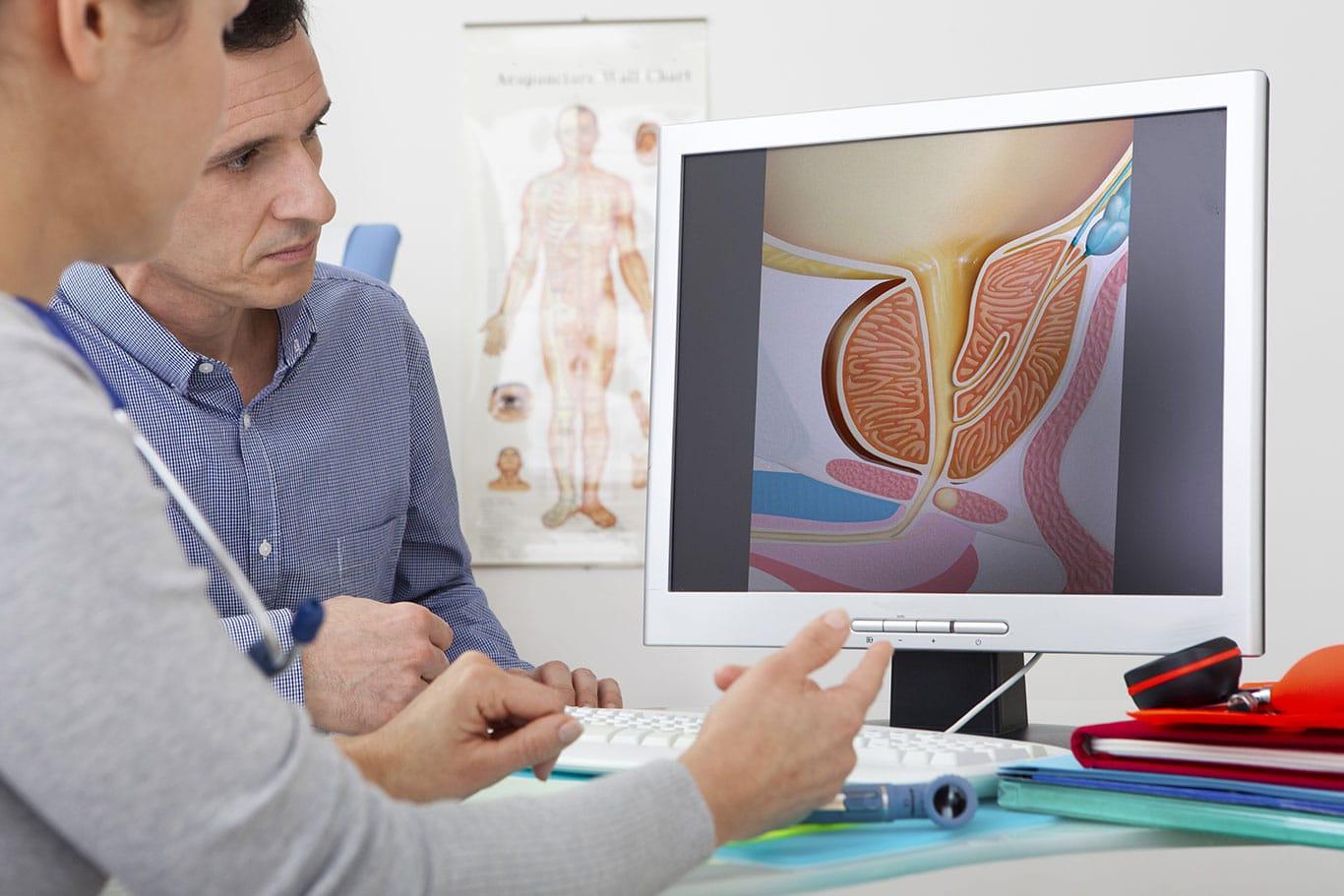 urológus székesfehérvár Akár krónikus prosztatitis is továbbít